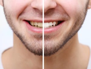 Man smiling with before and after teeth whitening results