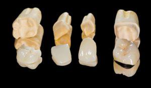 Dental restorations on a black background